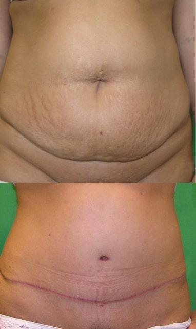 Hogyan feszesítheted fogyás után megnyúlt bőrödet? | Peak girl