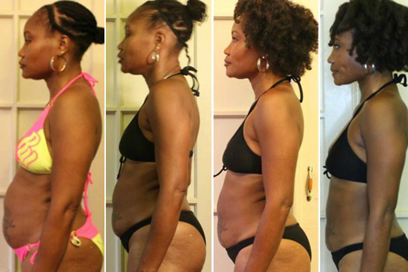 3 hónap alatt lefogy a legtöbb súlya zsírégetés előrehaladott