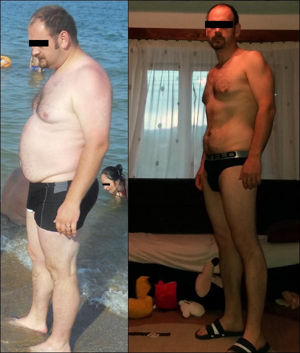 """""""Minek a műtét, hiszen le tudsz fogyni!"""", 25 kg súlycsökkenés 6 hónap alatt"""