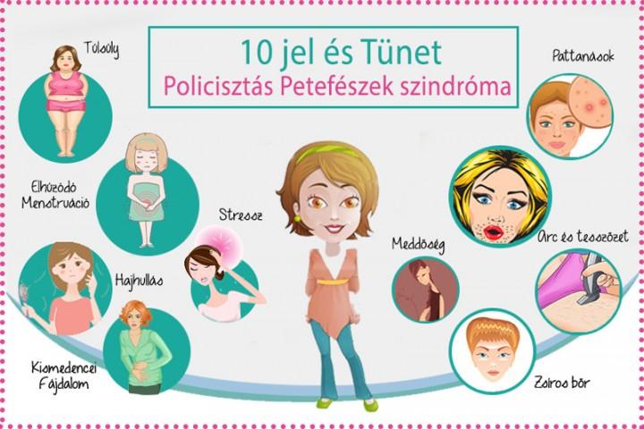 súlyvesztés policisztás petefészek szindróma)