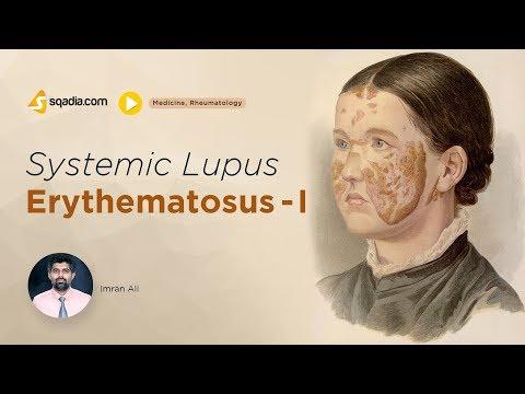 Lupus nem képes lefogyni. Betegség is okozhatja, ha nem tud fogyni