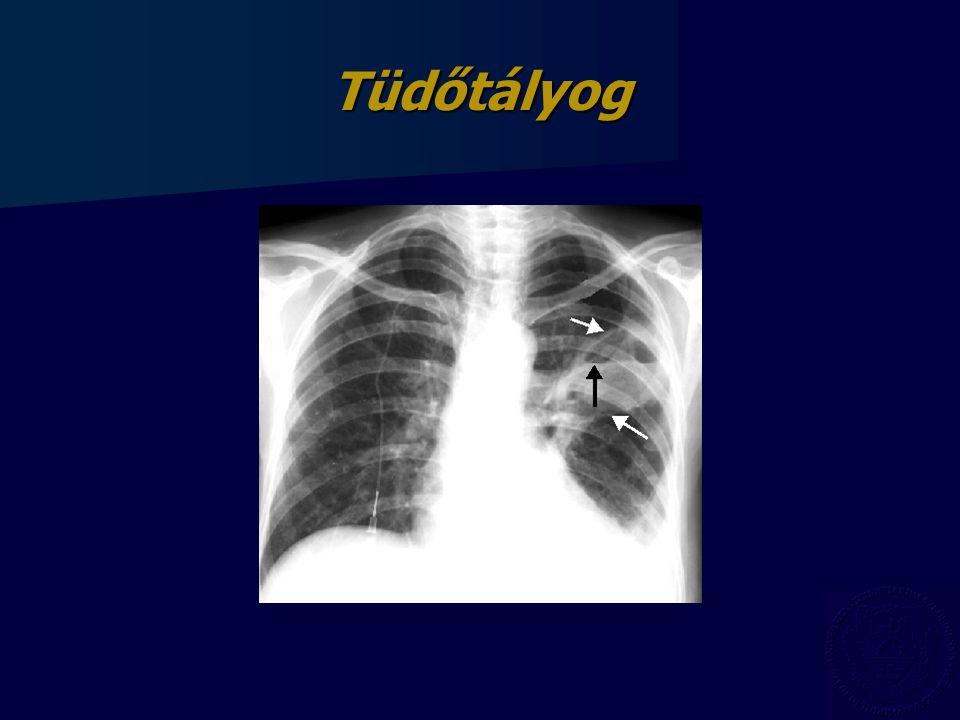 tüdő tályog fogyás)