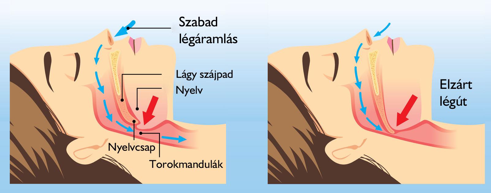 Végre! Itt az alvópózok rangsora
