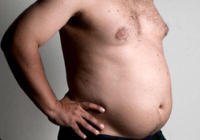 fogyás elhízott férfi)