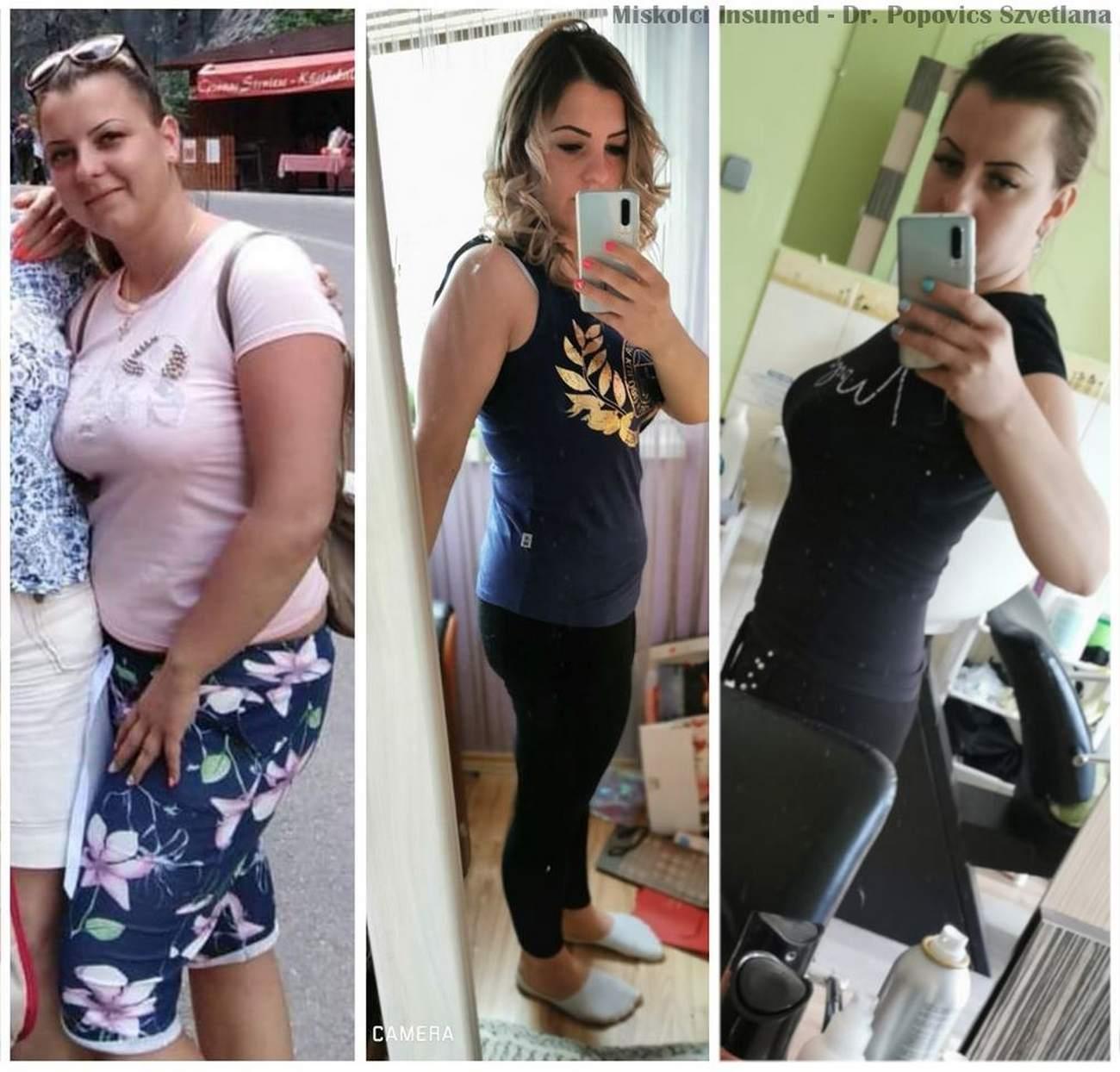 Lefogyhat súlyokkal?. 5 ok, amiért nem tudsz lefogyni