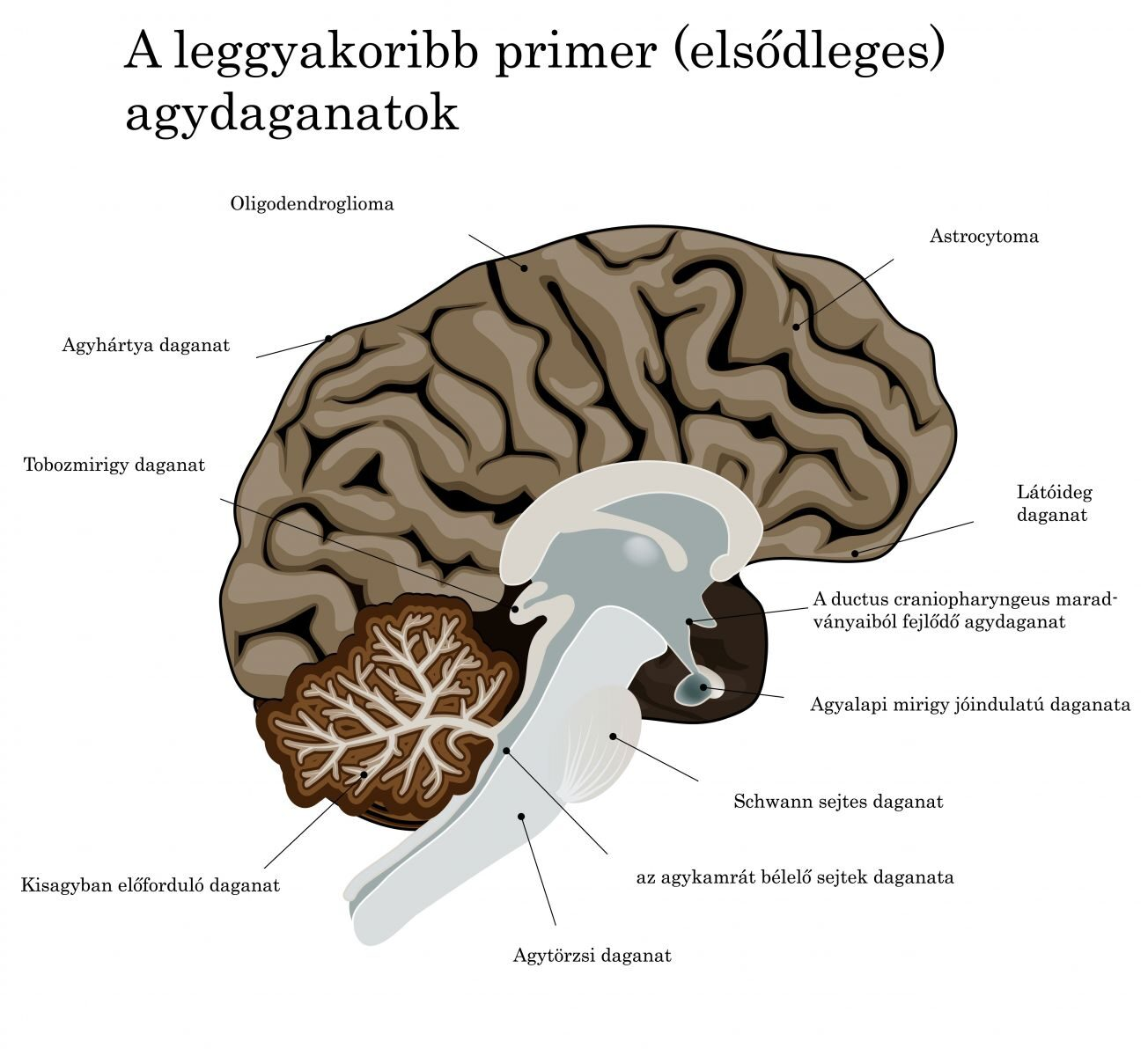 az agydaganat okoz-e fogyást