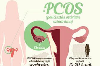 PCOS tünete és kezelése - Nőgyógyászati Központ