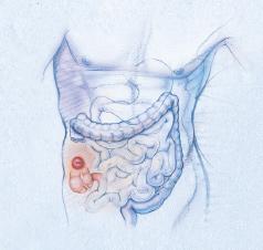 lefogyok-e az ileostomia megfordítása után