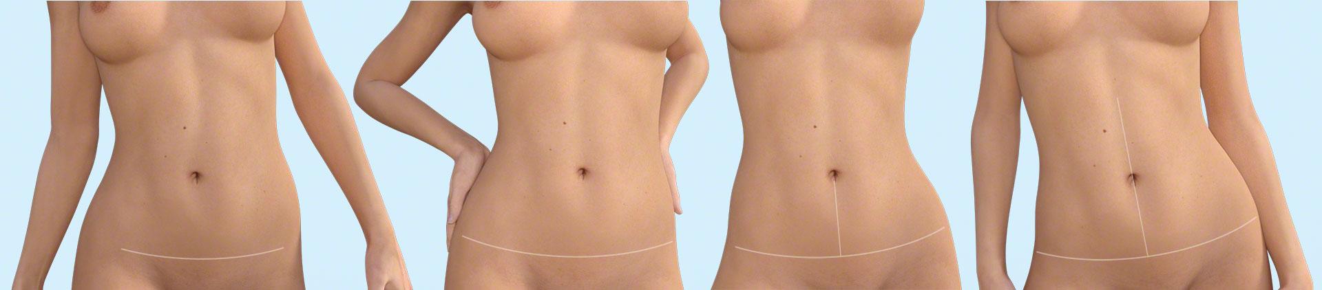 Minden, amit a hasplasztikáról tudni kell - dr. Pataki Gergely plasztikai sebész