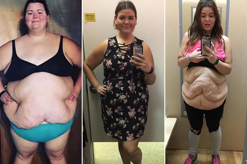 97 kiló volt szülés után, 9 hónap alatt 32 kilót dobott le a magyar anyuka   nlc
