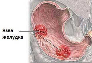 peptikus fekélybetegség és fogyás)