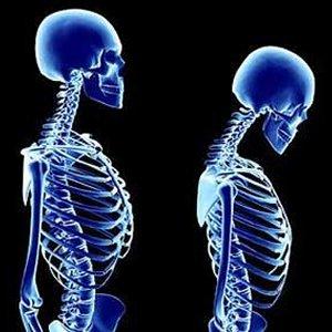 Fogyás és alacsony csontsűrűség. Csontritkulás (oszteoporózis) - EgészségKalauz