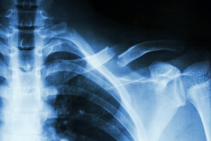 nehéz csontok fogyás)