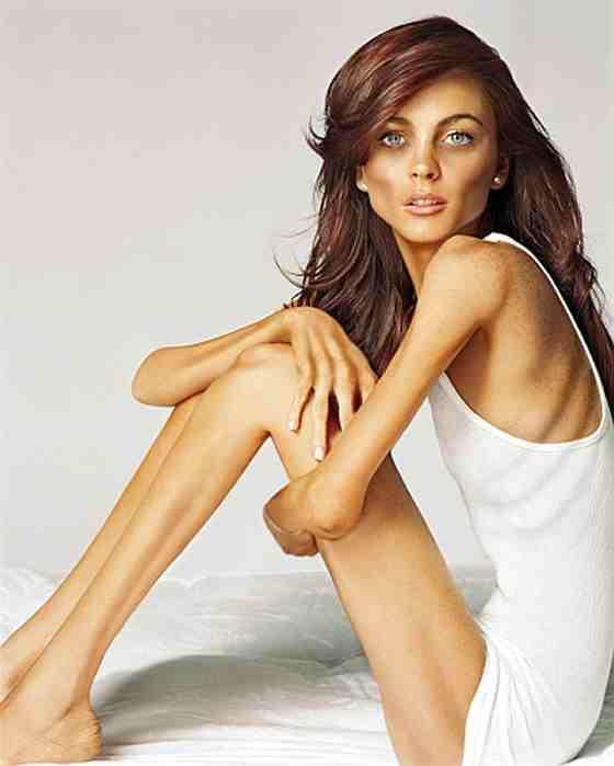 Elhízás fogyókúra: anorexia-lindsay-lohan (kép)