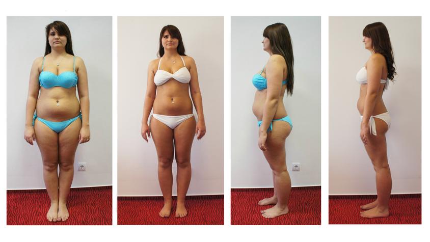 25 kg súlycsökkenés 4 hónap alatt)