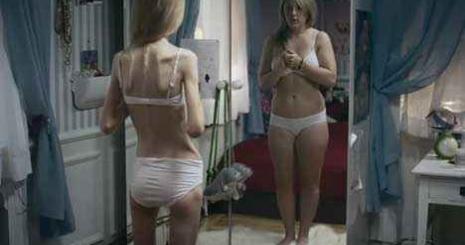 fogyás történetek anorexia
