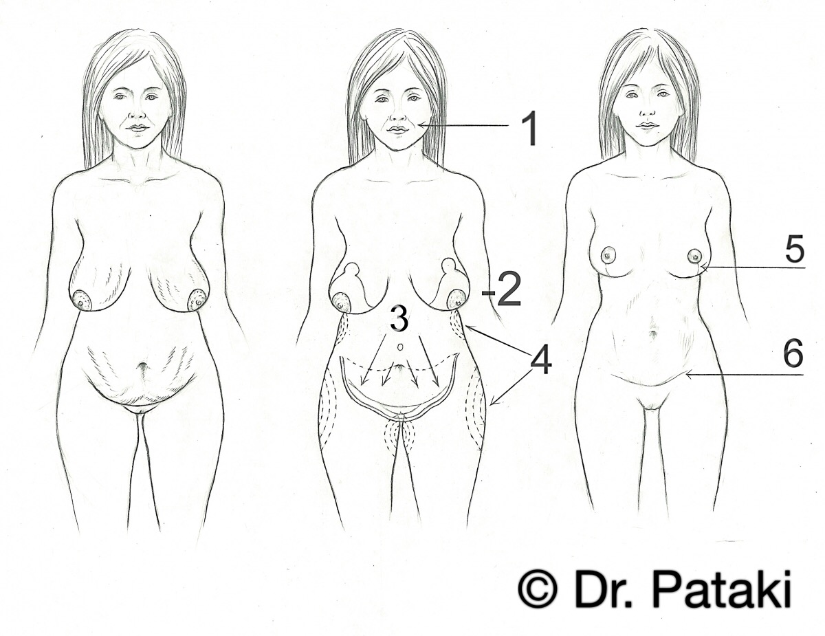 Hasplasztika - dr. Pataki Gergely plasztikai sebész