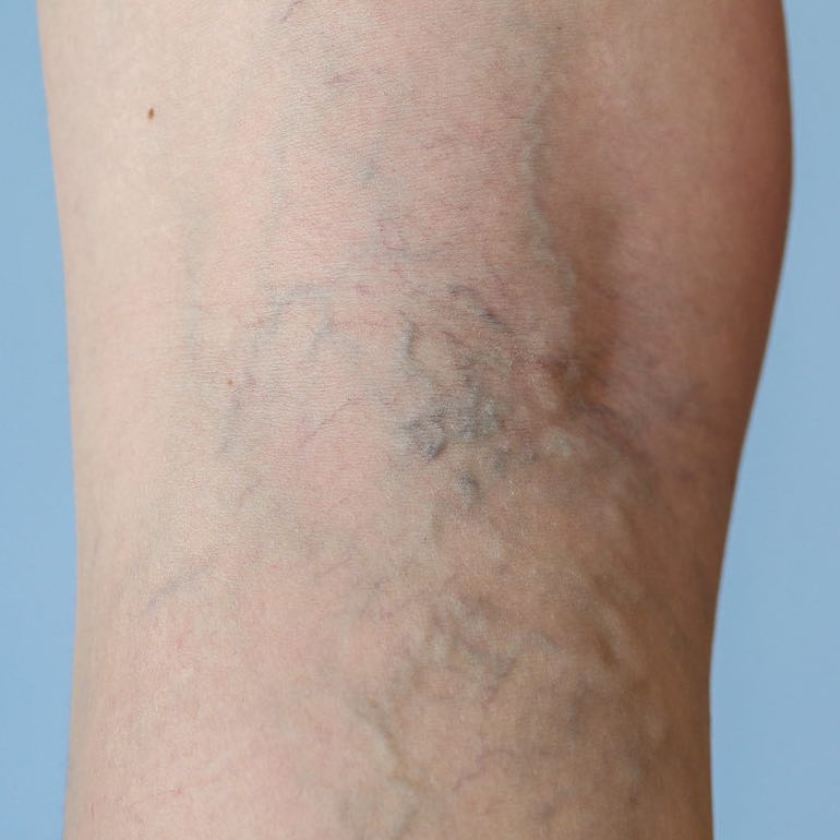 Tavasszal a bőrnek különleges gondoskodásra van szüksége - legyonmagad-blog