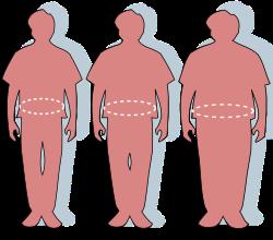 Súlycsökkenés súlyosan elhízott