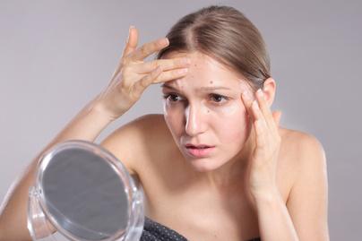 Bőrproblémák: hogyan kezelje a pattanásos bőrt?