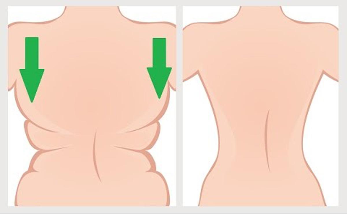 hogyan lehet eltávolítani a zsíros hónaljat