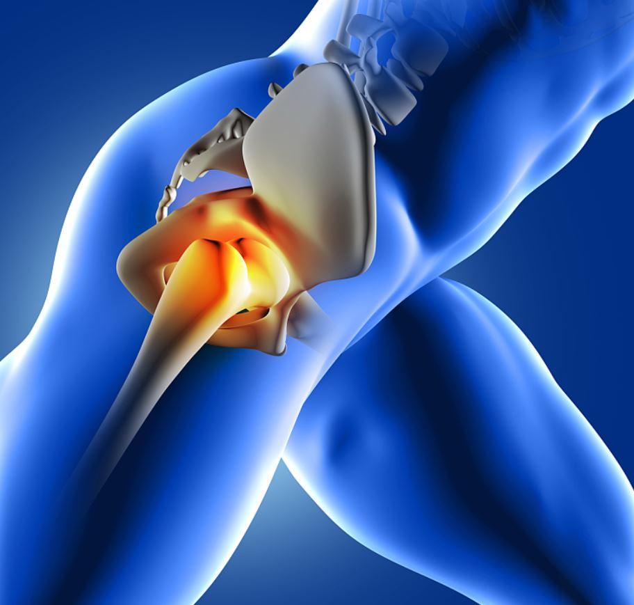 hogyan lehet fogyni a csípőprotézis után