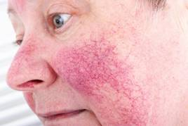 A lupusz tünetei, szövődményei és kezelése