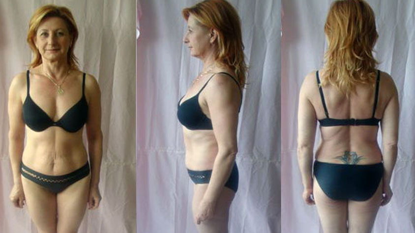 Így fogyhatsz le a hasadról 50 éves kor felett! Női zsírégetés 50 felett