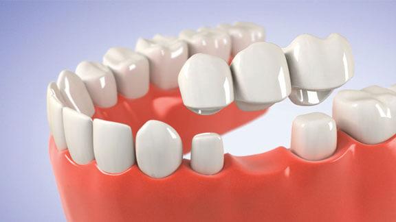 fogyás fogászati problémák